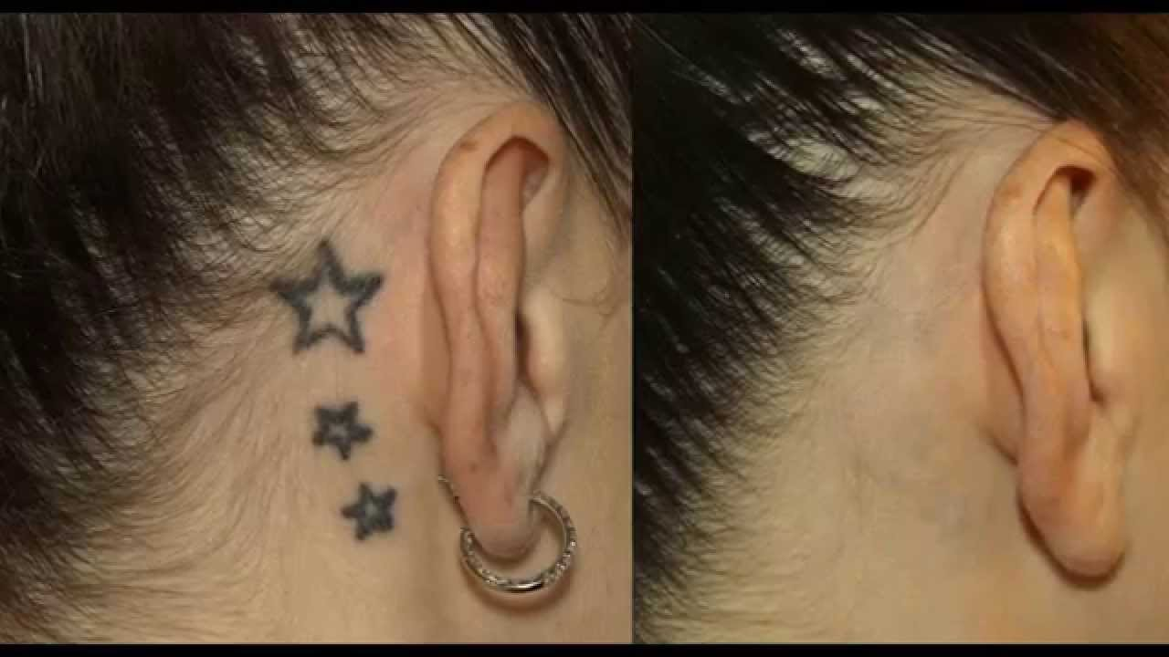 Ensure You Get Best Tattoo Removal Services in Melbourne