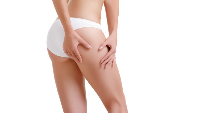 Realities about Thigh Lift Surgery You Should Be Aware Of