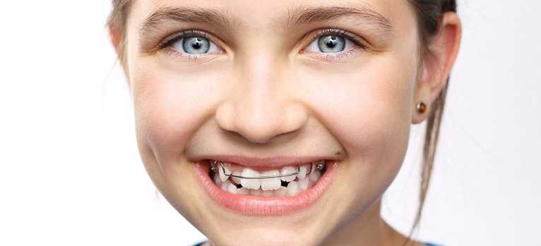 All You Have To Know When Searching For the Best Orthodontist