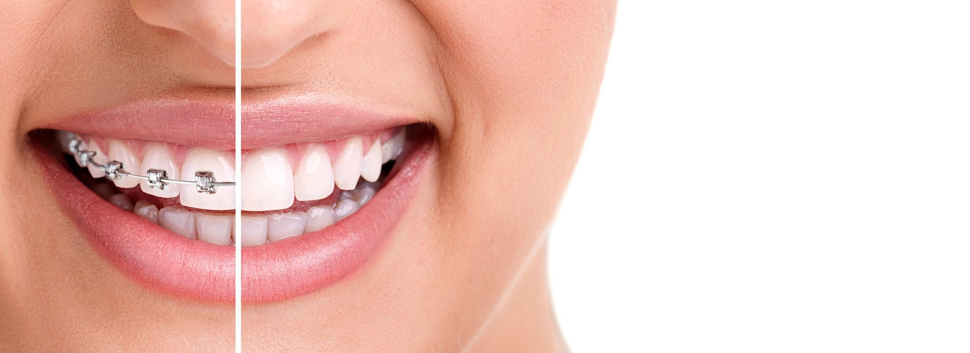 Looking for an Orthodontist: Know their role and responsibilities