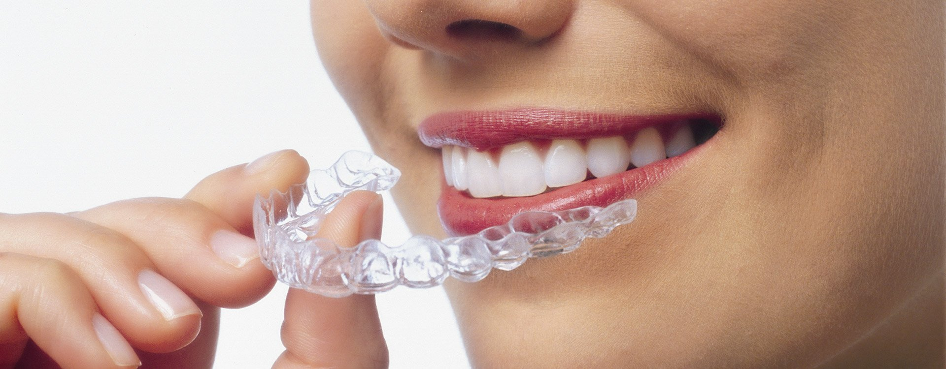 Health Awareness: Few Things to Know About Mouthguards