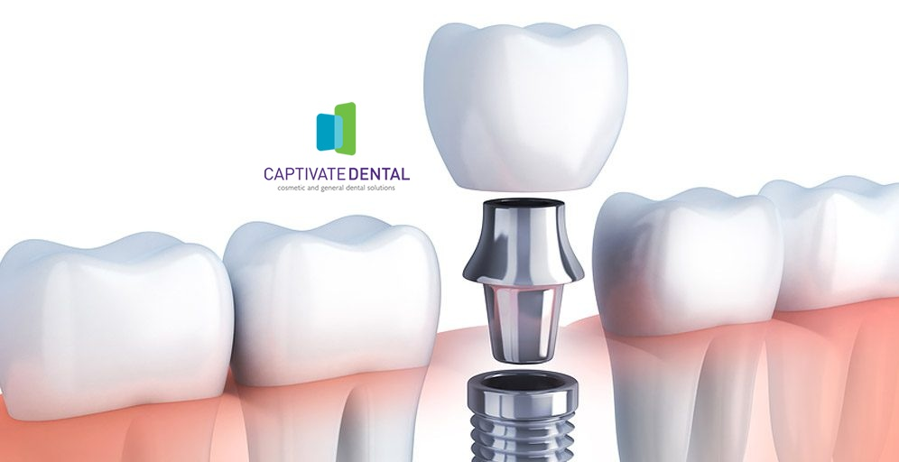 Makeover Confidence Smile with Best Dental Implants in Melbourne