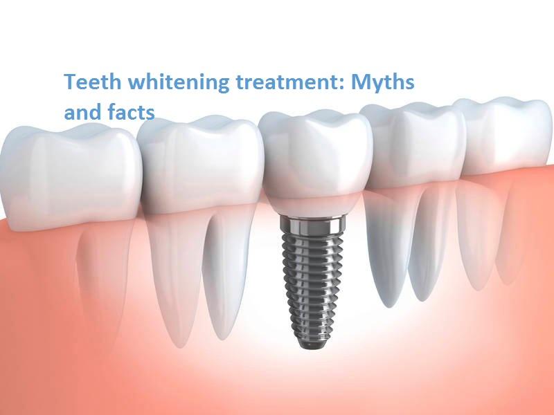 dental-implants-1509383957-2587