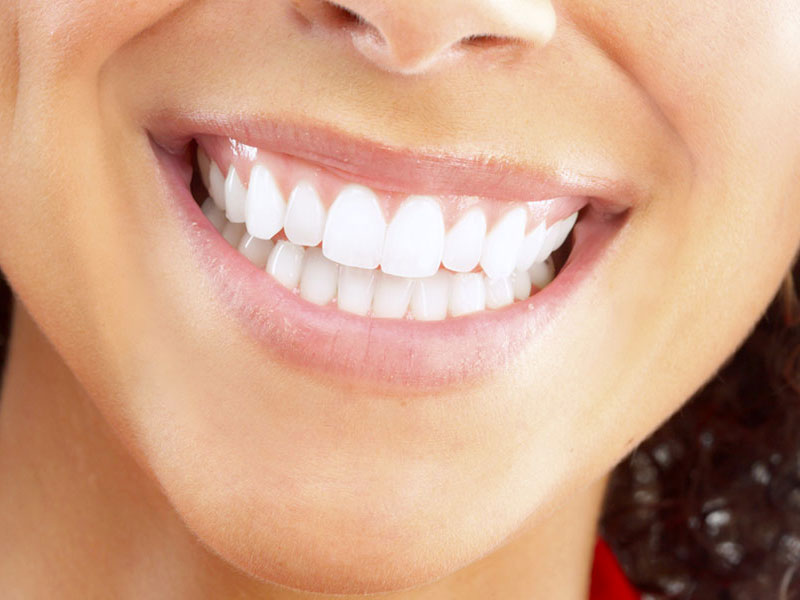A Perfect Alignment Tooth, Best Dental Implant Center in Ahmedabad