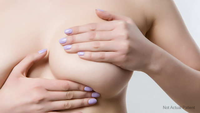What are important facts that every woman should know about a breast lift Melbourne surgery?