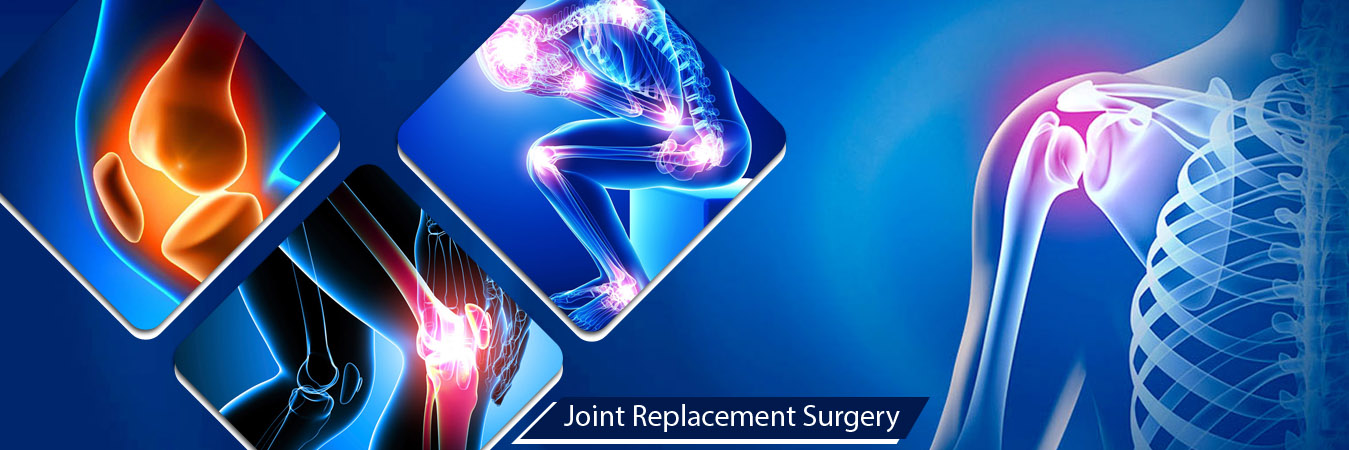 Time Getting Important of Joint Replacement Surgery Doctor in Ahmedabad