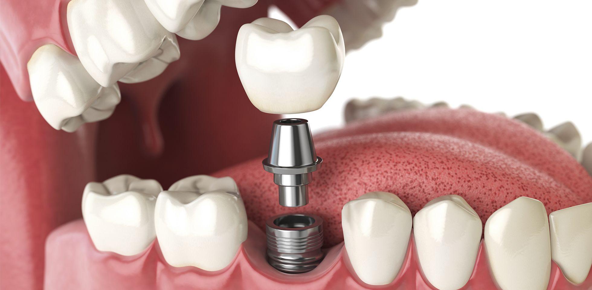 Why should I visit the dentist regularly?