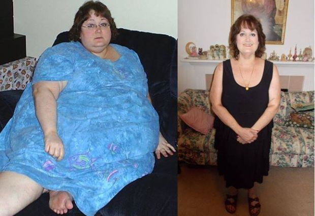 Improving the Body Structure with Best Weight Loss Surgery