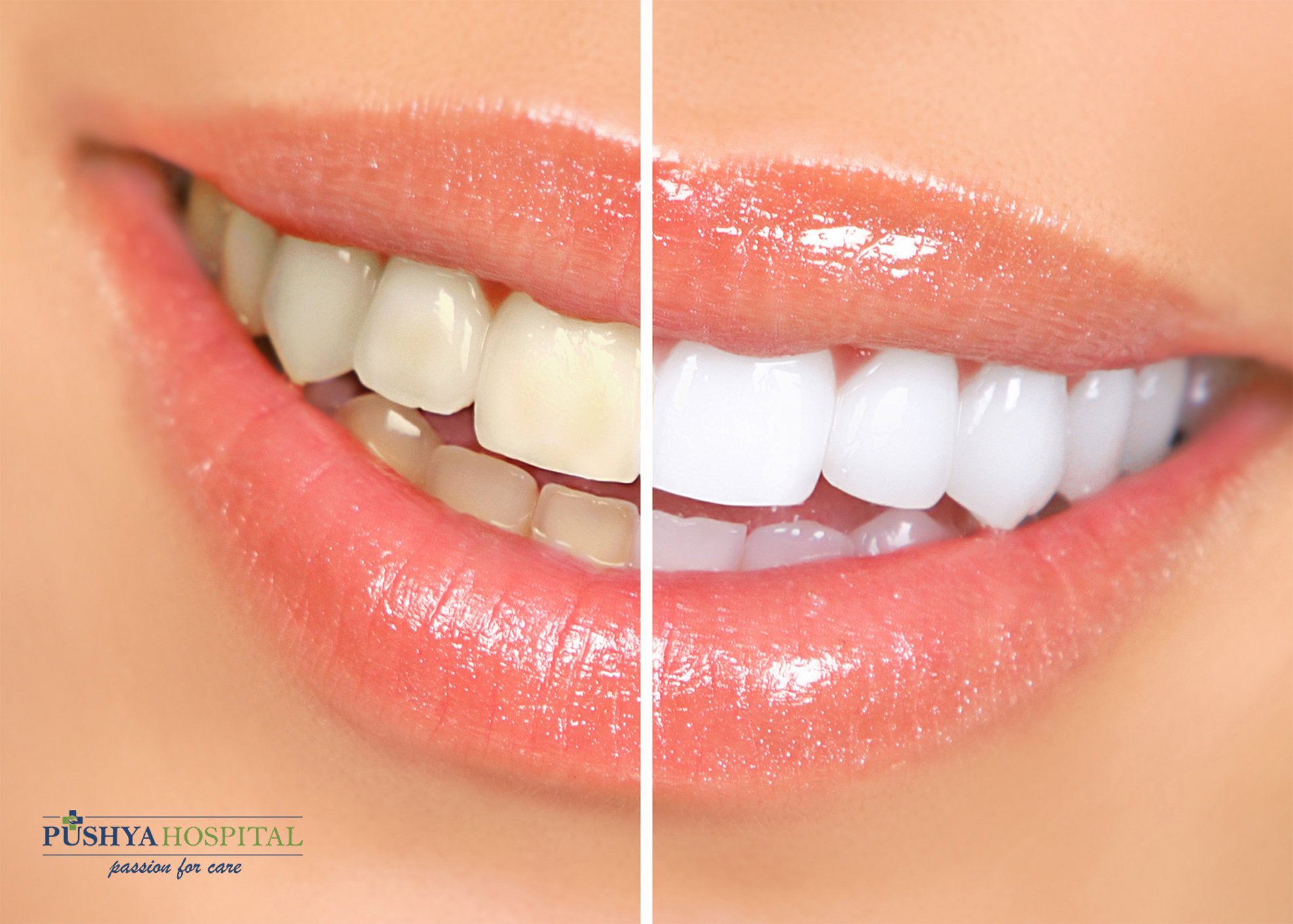 What are the different effects of Teeth Whitening Treatment?