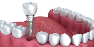 Should I Go For The Regular Check-Up Of The Oral Health?