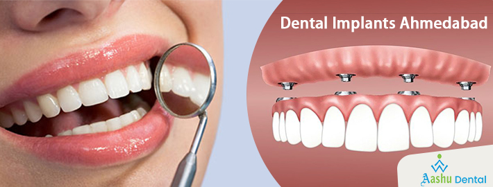 What Is Dental Implant Treatment and how is it Treated?