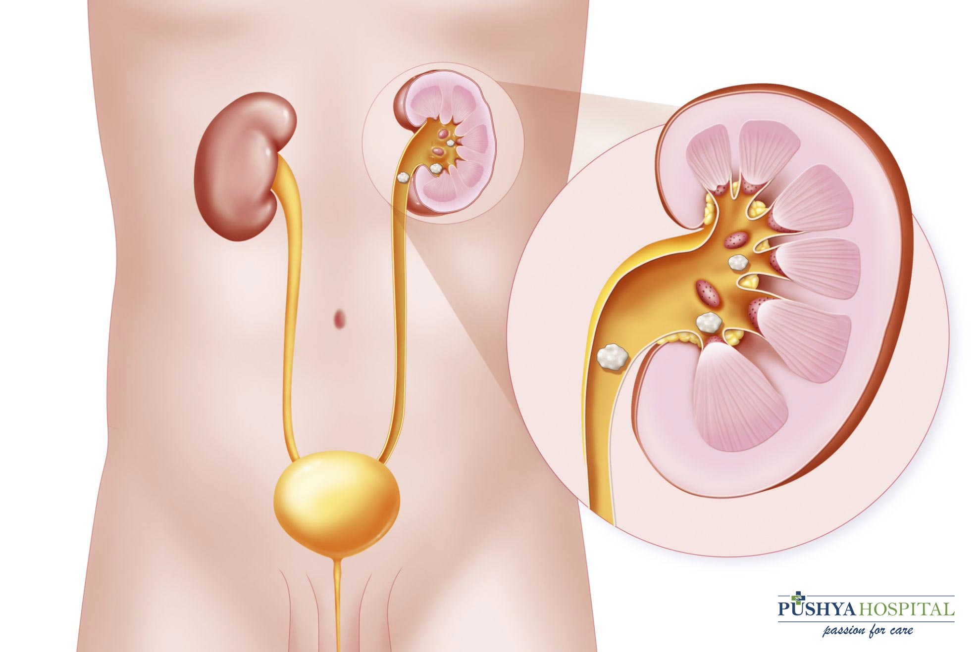 Kidney Stone: Causes, Symptoms & Treatment For The Urologic Patient
